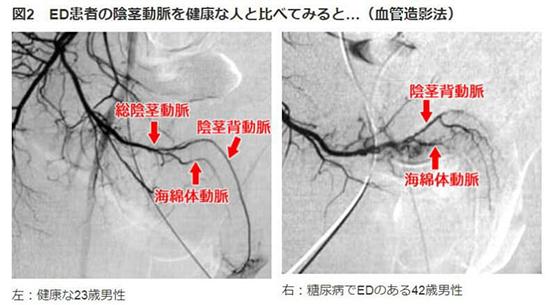 血管造影法で動脈硬化を知る。健常者と糖尿病患者