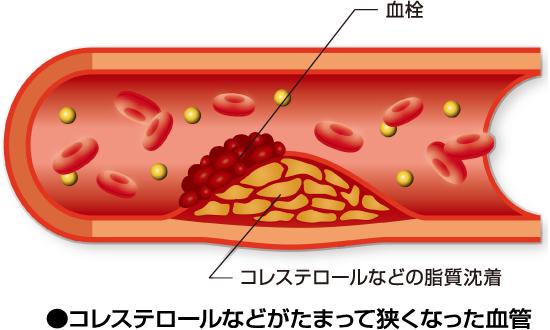 コレステロールが溜まり動脈硬化へ