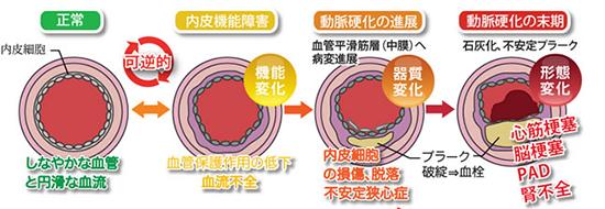 血管内皮細胞が傷つき動脈硬化へ